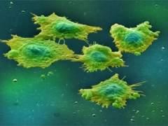 Las tasas europeas de cáncer colorrectal en adultos jóvenes aumentan un 6% cada año