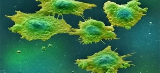 Las tasas europeas de cáncer colorrectal en adultos de menos de 39 años aumentan un 6% cada año