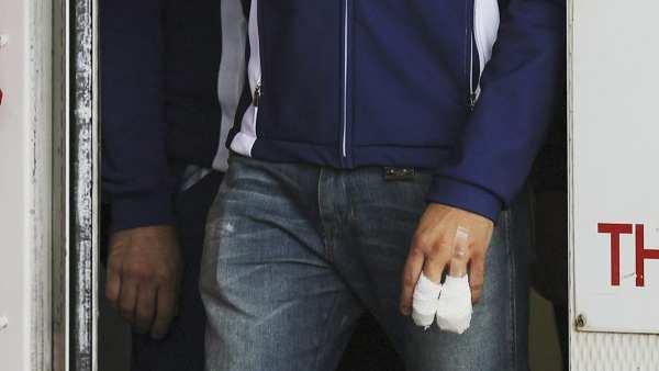 Imagen de la mano dañada de Lorenzo