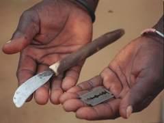 Unas 60 niñas, hospitalizadas tras sufrir mutilación genital en Burkina Faso
