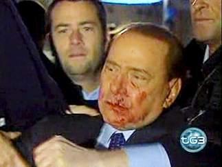 Berlusconi tras ser agredido en 2009