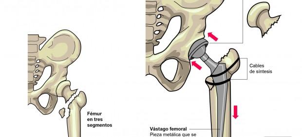 Gráfico de la operación de cadera