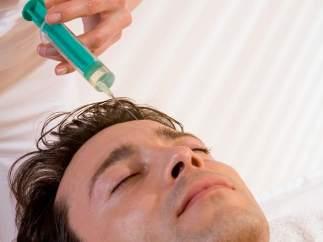 Botox para el hombre
