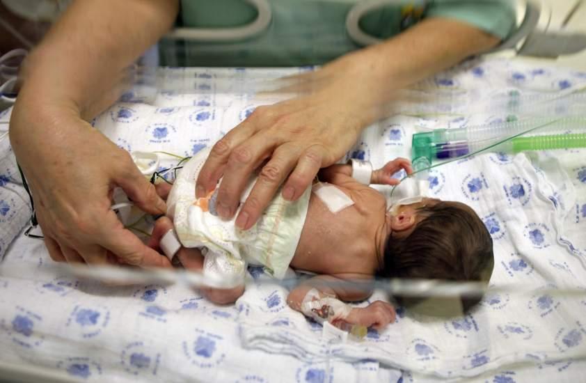 Bebés prematuros: ¿qué causas provocan que cada vez se den más ...