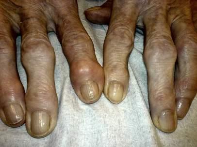 ArtrosisConsejos Cómo La Con Mejorar Para Convivir u5T3F1clKJ