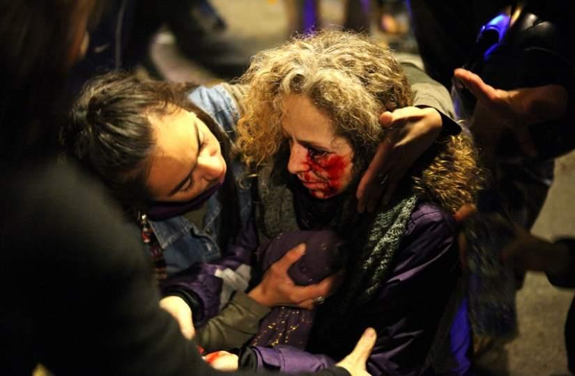 Derrame en un ojo. Una mujer herida en las cargas policiales registradas en Barcelona durante la jornada de hulega general del 14-N. Según el lector y fotógrafo que ha facilitado a 20minutos.es esta fotografía, Carlos Aláez,