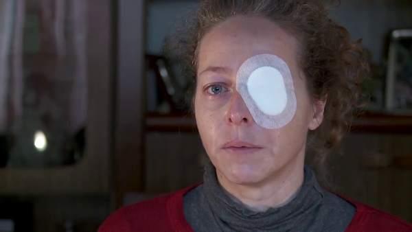 Habla la mujer que perdió un ojo el 14-N