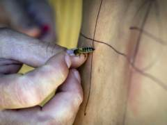 Un estudio revela la primera muerte de una española por acupuntura con abejas