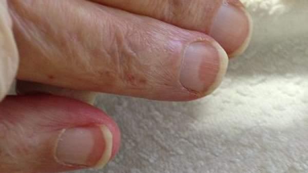 Las manchas en las uñas pueden ser un aviso de enfermedades cutáneas ...