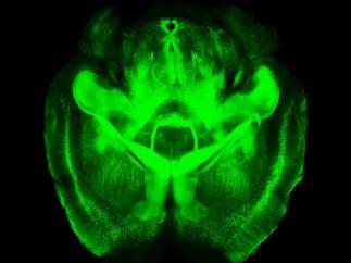Cerebro transparente