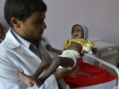 Cerca de 1,4 millones de niños, en riesgo de morir por malnutrición