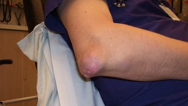 Resultado de imagen de gota en el brazo