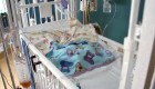El 'SuperGlue' salva a un beb� en EE UU