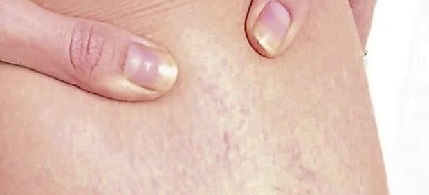 El tratamiento varikoza la escleroterapia