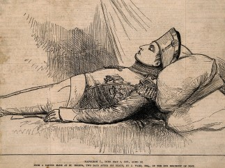 The body of Napoleon Bonaparte laid out after death, 1821