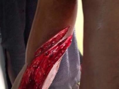 Heridas por la concertina de Melilla