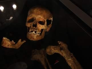 Una calavera vikinga en la que se aprecia la marca de un surco en la dentadura.