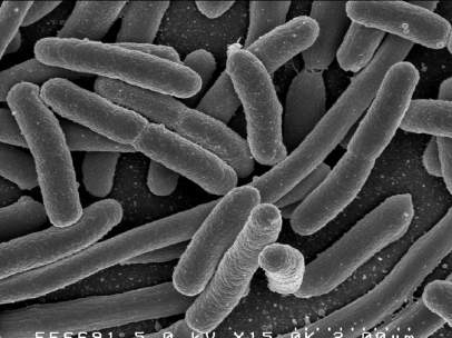 Bacteria en el intestino humano