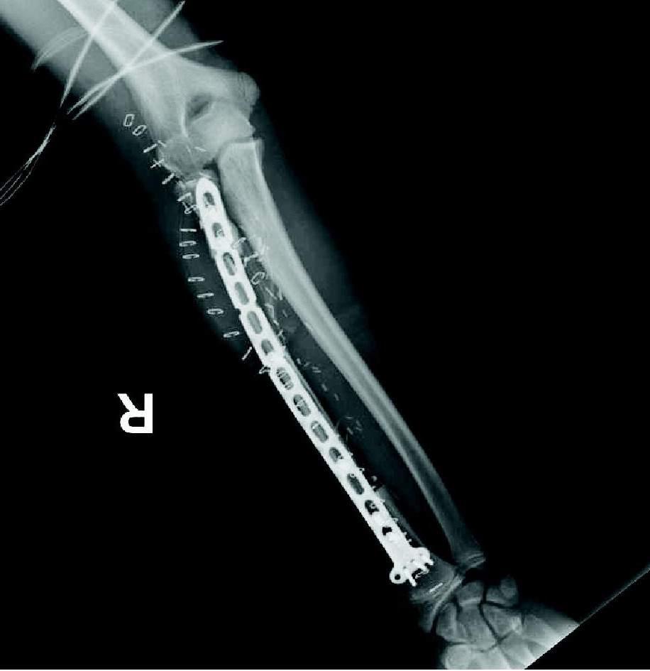 Fotos de protesis de pierna 30