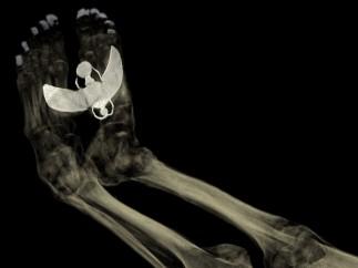 'CT scan of the feet of Tayesmutengebtiu'