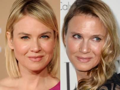 Renée Zellweger, antes y ahora