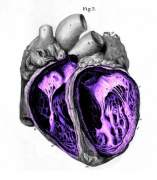 'El coraz�n delator'
