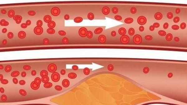 Errores que se cometen al tratar de reducir el colesterol 'malo'