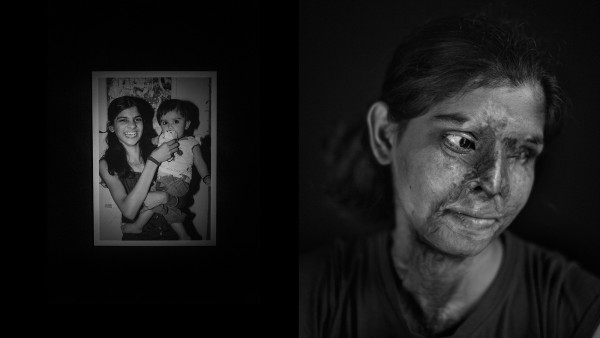 Acid Survivors in India