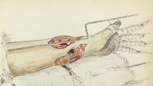 Ivan Albright. Medical Sketchbook,1918