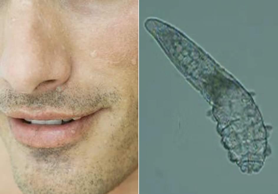 As son los caros microsc picos que viven en la cara - Donde viven los acaros ...