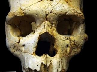Cráneo del primer asesinado de la historia