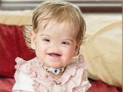 Una niña de dos años sin nariz tendrá una hecha gracias a una impresora 3-D