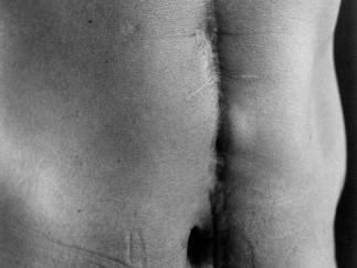 Ishiuchi Miyako - Scars #27 (Illness 1977), 1999