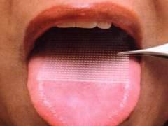 Alertan de que el uso de la malla lingual no cumple las normas sanitarias