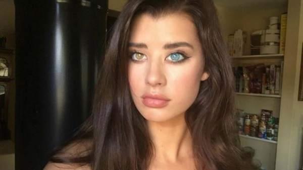 Sarah mcdaniel la modelo con un ojo de cada color que - Husky con occhi diversi ...