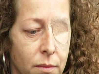Esther Quintana, la mujer que perdiò un ojo por una pelota de goma