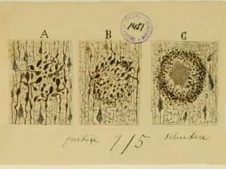 Formation of Alzeimer Plaque, Cajal Legacy
