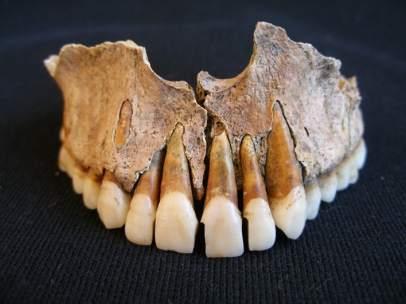 Manipulación dentaria