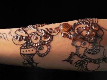Un Tatuaje De Henna Desfigura El Brazo De Una Nina De Siete Anos