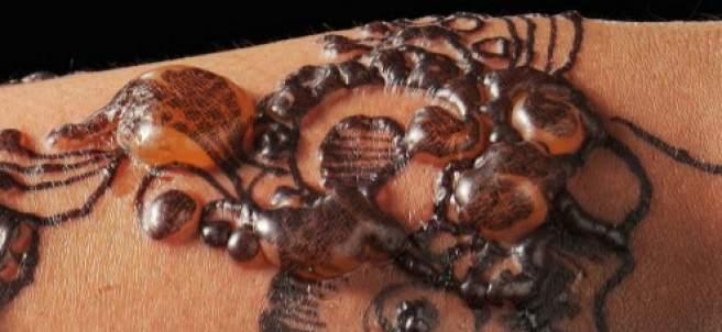 Alergia a la henna