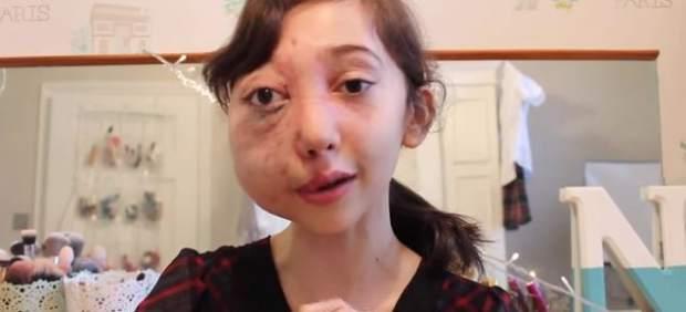 Nikki, la 'youtuber' de 11 años que arrasa con una campaña para investigar su dolencia