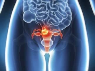 Endometriosis.
