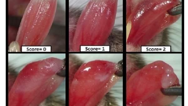 Escala para estimar la mucositis oral inducida por radioterapia