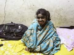 La ciencia, última esperanza para la 'niña lobo' de Bangladesh