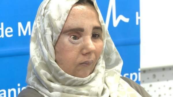 Samira ha recuperado su rostro tras tres intervencione en el Hospital de Manises