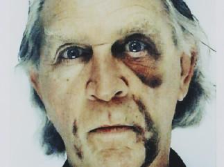 Jimmie Durham - Self-portrait with black eye and bruises  [Autorretrato con el ojo morado y contusiones], 2006