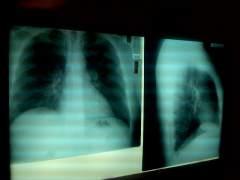 Las enfermedades respiratorias lideran el aumento de muertes