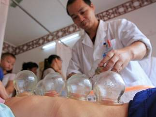 Cupping, terapia china milenaria