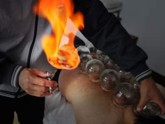 Cupping, terapia china milenaria