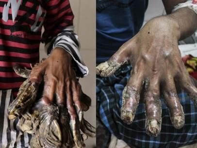 Las manos del 'hombre árbol'